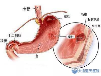 大连春柳胃病医院告诉您,慢性胃病的病理危害有哪些?